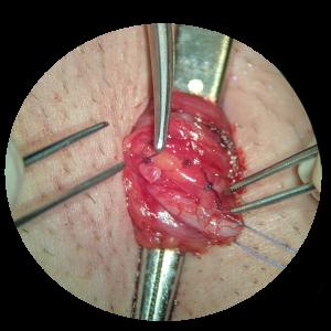 żylaki powrózka nasiennego - operacja mikrochirurgiczna