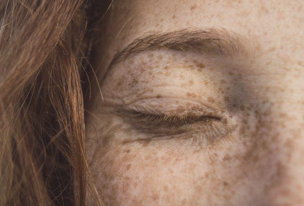 Botox - Niech Cię nie paraliżuje!